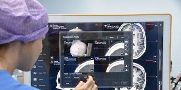 Verbeteren van epilepsie chirurgie door multimodale planning